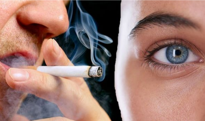 Eye Disease and Cigarette Smoking